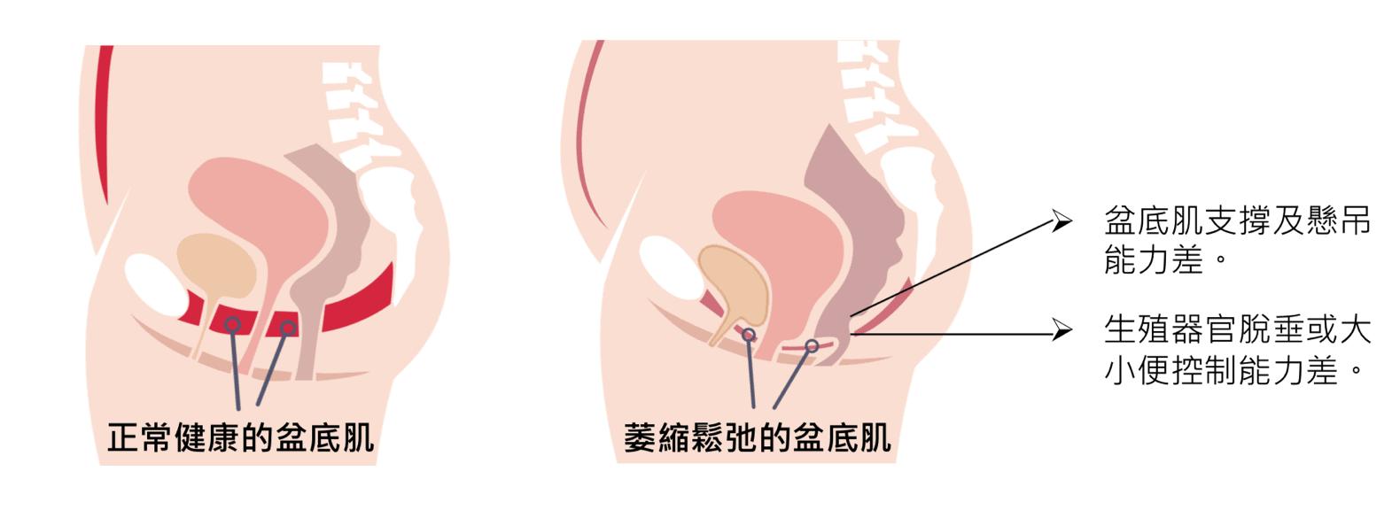 Emsella G動椅 6