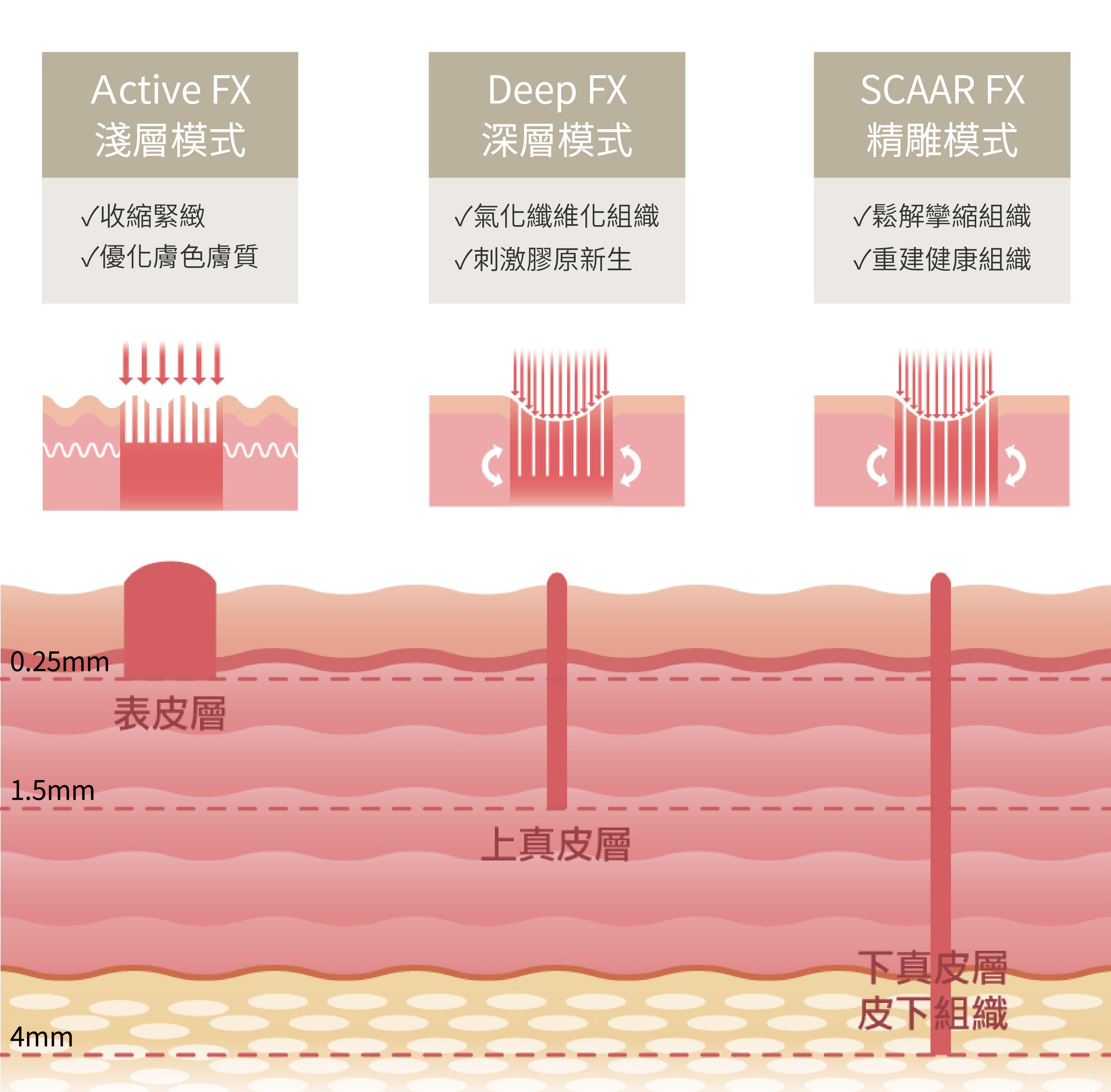 三種模式 UP雷射 痘疤毛孔細紋