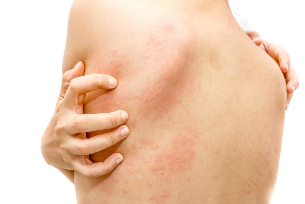 皮膚小知識   遇到蕁麻疹怎麼辦? 1